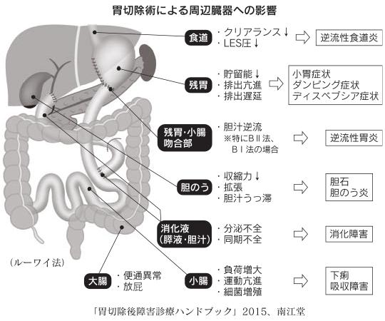 胃切除術による周辺臓器への影響